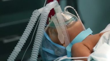 Unidentified child with oxygen mask ready for surgery — Stock Video