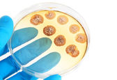 Fungi microorganisms on agar plate in laboratory — Stock fotografie
