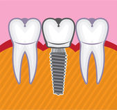 Dental implants — Stock Vector