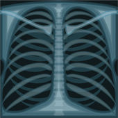 Lungs X ray — Stock Vector