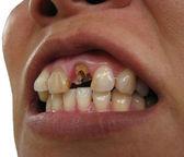Broken tooth — Stock Photo
