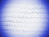 Red graph brain wave EEG — Stock Photo