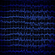 Brain wave eeg isolated on black background — Stock Photo