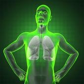 Radiografía del pecho humano — Foto de Stock