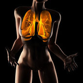 Woman chest radiography scan — Stock Photo