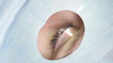 Eye Laser Surgery — Stock Video