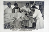 Old postcard of the war of 14, trepanation in an ambulance of the face — Stock Photo