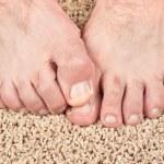 Itchy feet — Stock Photo