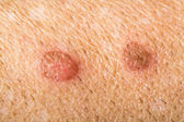 Skin infections — Stock Photo
