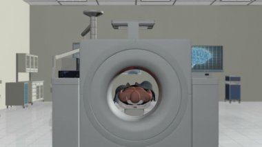 MRI Hospital, Camera Fly Through and stop on Brain Scan, Alpha — Stock Video