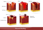 The process of wound healing — Stock Vector