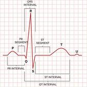 Human heart normal sinus rhythm, electrocardiogram — Stock Vector