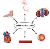 Diabetes mellitus — Stock Vector
