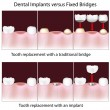 Dental implants versus fixed bridges - Stock Vector