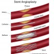 Stent angioplasty, eps10 — Stockvectorbeeld