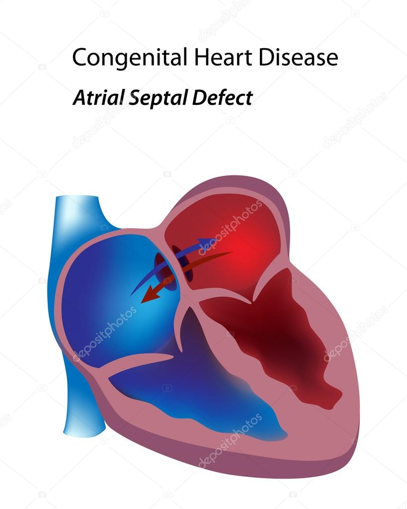 Congenital heart disease: atrial septal defect, eps8 — Stock Vector #13133499