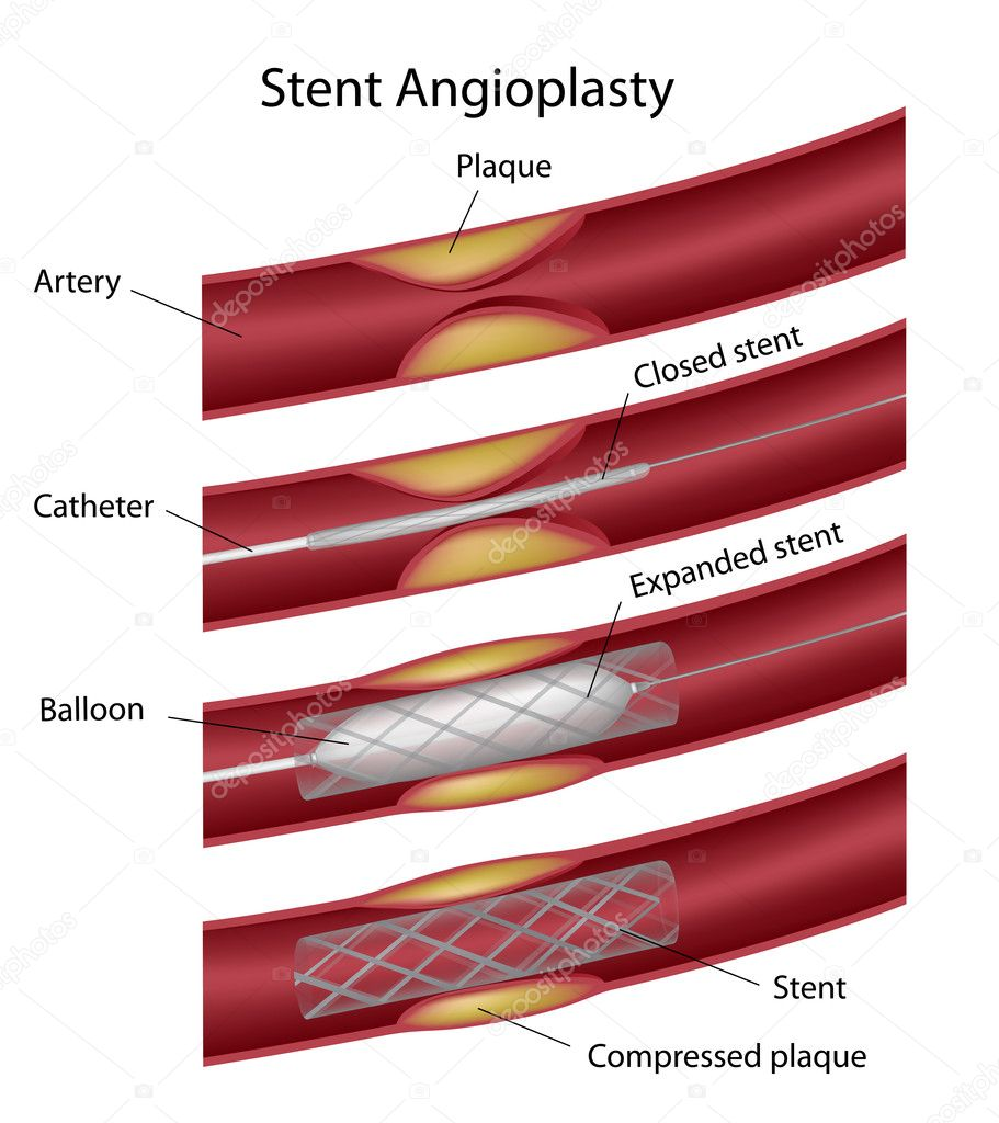 Stent angioplasty, eps10 — Stock Vector #13133525