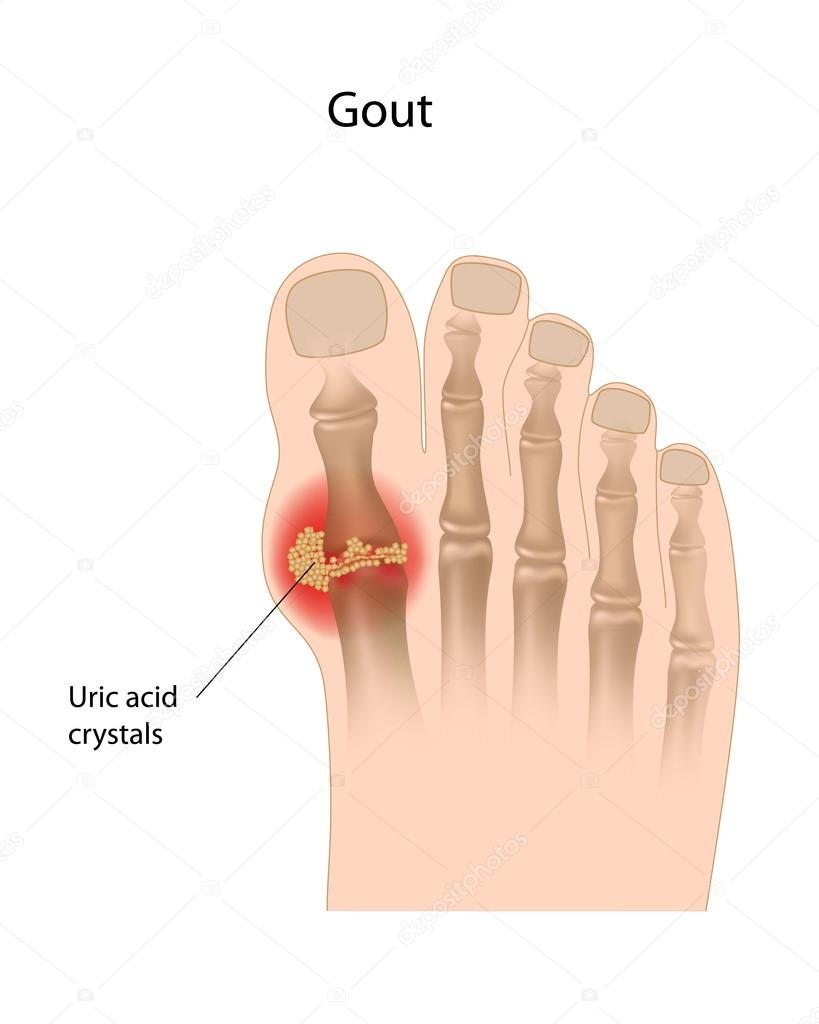 Gout of the big toe, eps10  Stock Vector #13338581