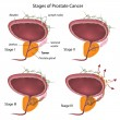 Stages of prostate cancer, eps10 - Stock Vector