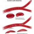 Royalty-Free Stock Imagen vectorial: Sickle cell disease, eps10