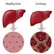 Liver Cirrhosis, eps10 - Stock Vector