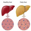 Fatty liver, eps10 — Stock Vector