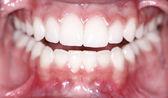 Dentes limpos — Foto Stock