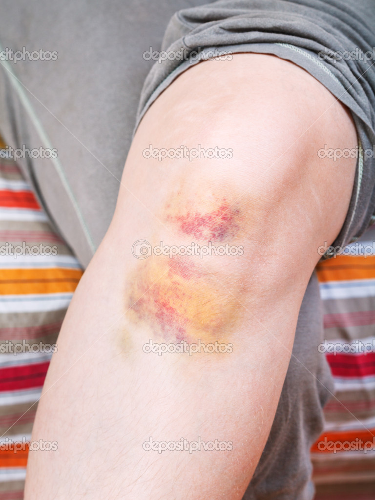 гематома ноге фото