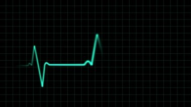 EKG heartbeat monitor, animation — Stock Video