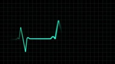 EKG heartbeat monitor, animation — Stock Video