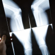 Knee x-ray image — Stock Photo