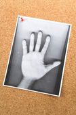 Photocopy of hand on the Bulletin Board — Stock Photo
