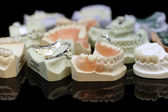 Dental Lab Products — Stock Photo