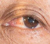 Badanie okulistyczne. — Zdjęcie stockowe