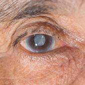 Eye examination. — Stock Photo