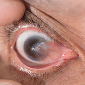 Pterygium — Stock Photo
