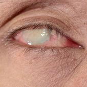 Examen de la vue — Photo