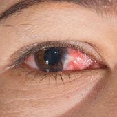 目の検査 — ストック写真