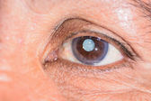 Cataract — Stock Photo