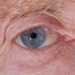 Eye examination — Stock Photo