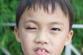 "Boy with abscess ""stye"" — Stock Photo"