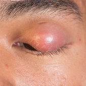 "Eye lid abscess ""stye"" — Stock Photo"