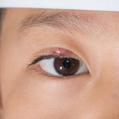 "Eye lid abscess ""stye"" — 图库照片"