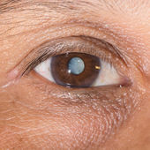 Cataract — Stock Photo