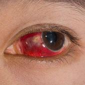 Eye exam — Stock Photo