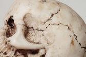 Human cranium — Stock Photo