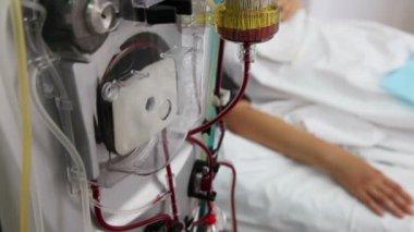 Yapay böbrek (diyaliz) tıbbi cihaz — Stok video