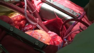Beating heart and cardiopulmonary bypass — Stock Video