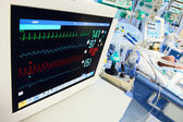 Neonatal ICU with ECG monitor — Stock Photo