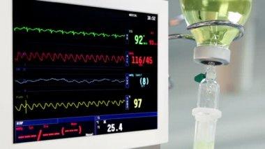 вращение монитора в комнате операции с капельного и хирургов на фоне — Стоковое видео